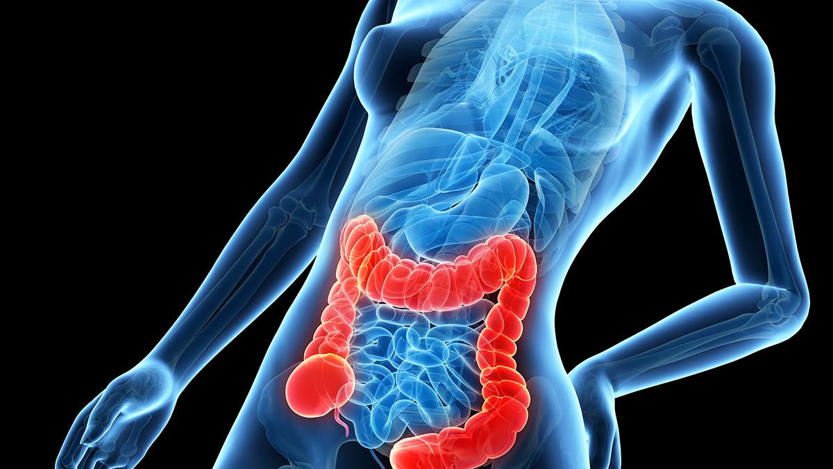 prostatitis o colon irritable
