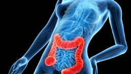 Síndrome del Intestino Irritable - Colon Irritable 1