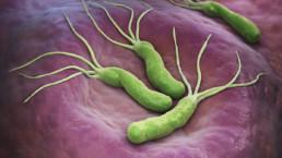 Infección por Helicobacter Pylori 1
